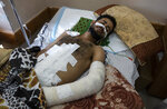 Ghassan Al-masri, 22, rests at the Shifa hospital in Gaza City, Thursday, May 13, 2021, where he is receiving treatment for wounds caused by a May 10 Israeli strike that hit a nearby his family house in town of Beit Hanoun.  Just weeks ago, the Gaza Strip's feeble health care system was struggling with a runaway surge of coronavirus cases. Now doctors across the crowded coastal enclave are trying to keep up with a very different crisis: blast and shrapnel wounds, cuts and amputations. (AP Photo/Khalil Hamra)