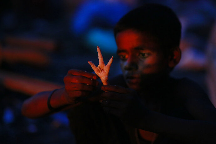 FILE - In this Friday, June 3, 2016 file photo, a homeless boy cleans a chicken's foot to prepare it for dinner, collected from chicken shops near a railway track in Gauhati, India. The 2018 Global Hunger Index published Thursday, Oct. 11, 2018, shows about 20 percent of Indian children under 5 suffer from acute under-nutrition in the same week the International Monetary Fund projected India to be the world's fastest-growing economy, exposing stark contrasts in the South Asian country. (AP Photo/Anupam Nath, File)