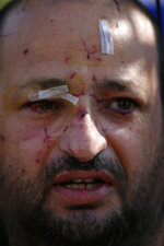A man injured in an apartment building hit by a rocket fired by Palestinian militants from Gaza, is bandaged in the southern Israeli city of Ashkelon, Israel, Tuesday, Nov. 13, 2018. Gaza militants fired dozens of rockets at southern Israel early on Tuesday, killing a man in a strike on a residential building, and warning they would escalate their attacks if Israel continues bombing targets in the Gaza Strip. (AP Photo/Ariel Schalit)