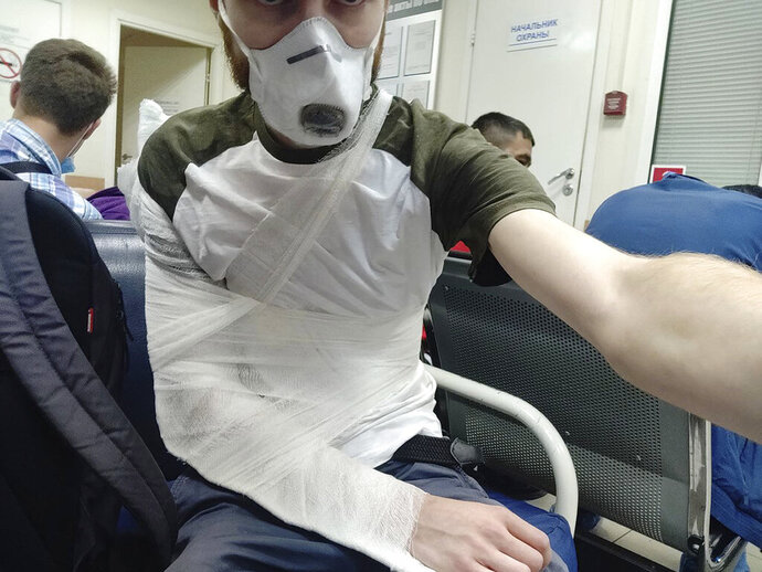 This selfie provided by Russian journalist David Frenkel shows his injuries after getting treated in a local hospital in St. Petersburg, Russia, Tuesday, June 30, 2020. A journalist was hospitalized with a broken arm on Tuesday after a confrontation with police at a polling station where he arrived to investigate reports of voter fraud. (David Frenkel via AP)