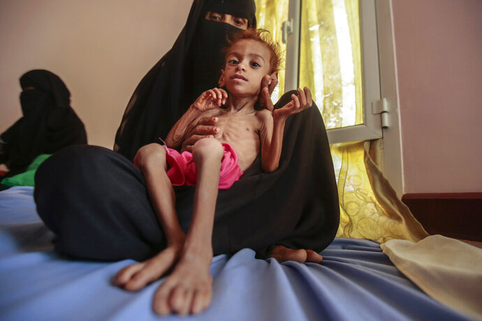 "FILE - In this Oct. 1, 2018, file photo, a woman holds a malnourished boy at the Aslam Health Center, in Hajjah, Yemen. A leading aid organization on Monday warned that U.S. Secretary of State Mike Pompeo's move to designate Yemen's Iran-backed Houthi rebels as a ""foreign terrorist organization"" would deal another ""devastating blow"