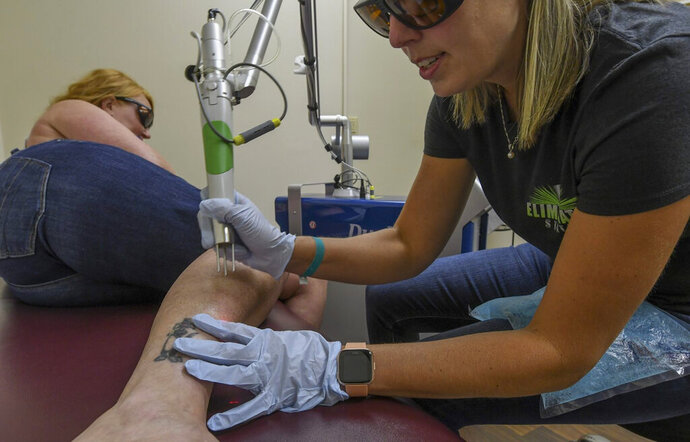 Rochelle Pommer, owner of Elimination Station laser tattoo fading and removal service in Tarentum, works on removing a tattoo on her client. Thursday July 18, 2019. (Louis B. Ruediger/Pittsburgh Tribune-Review via AP)