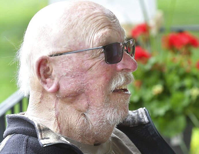 Scars on Larry Ballman's face from surgery to remove a lump of squamous cell carcinoma are visible as he sits on the front porch of his Cleveland, Minn., home Thursday, April 30, 2020. The surgery was delayed because of the state's halt on elective medical procedures in response to the COVID-19 pandemic. (Pat Christman/The Free Press via AP)